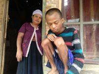 Pemuda Penderita Kelenjar Getah Bening di Pandeglang Butuh Bantuan